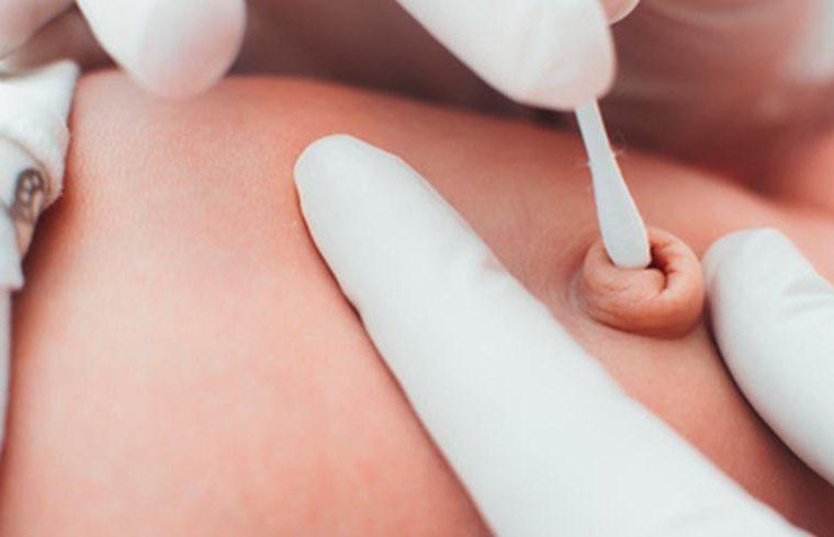 Cómo llevar a cabo la limpieza del cordón umbilical de tu bebé